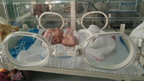Sản phụ sinh con bằng cách kéo đầu bé đến rách da và lún xương sọ