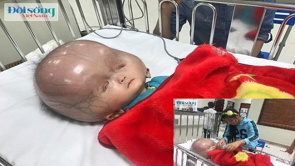 Mẹ cháu bé bị não úng thủy ở Thanh Hóa tiết lộ lý do thực sự không đưa con sang Singapore chữa bệnh