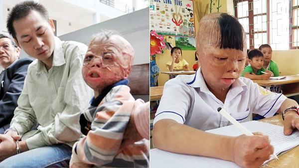 Thanh Hóa: Cháu bé bị bố tẩm xăng đốt hồi sinh kỳ diệu
