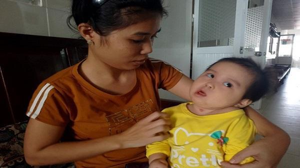 Xót thương bé gái Thanh Hóa hơn 1 tuổi bị côn trùng đốt khiến tay chân co quắp, teo não không thể nhận thức