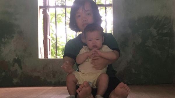 Con 8 tháng tuổi bị teo mật, bố mẹ tật nguyền cầu mong sự giúp đỡ ở Hưng Yên
