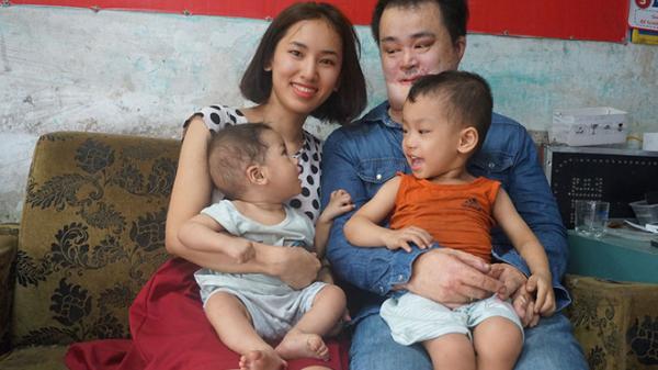 Chuyện cổ tích chàng trai bỏng 89%, mặt 'dị dạng' cưới vợ Bắc Giang trẻ đẹp và thành ông chủ