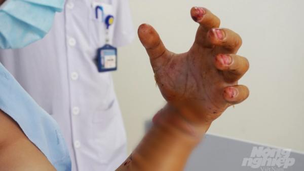 Máy nghiền bột cắt rời cẳng tay người đàn ông Hà Nam 44 tuổi