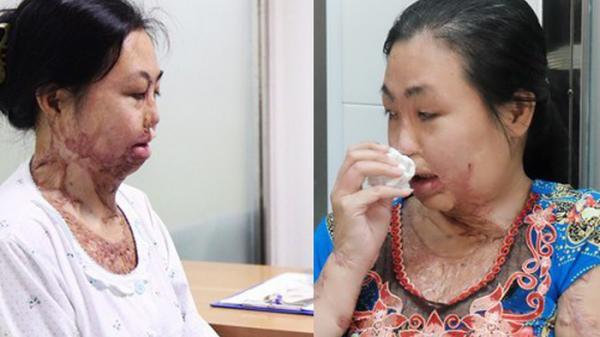 TPHCM: Người phụ nữ bị tạt axit sau khi chia tay chồng, đau đớn khi con trai 8 tuổi sợ hãi, không nhận ra mẹ