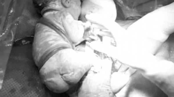 Ngoạn mục: Đưa bé bị 6 vòng dây rốn quấn chặt cổ ra đời
