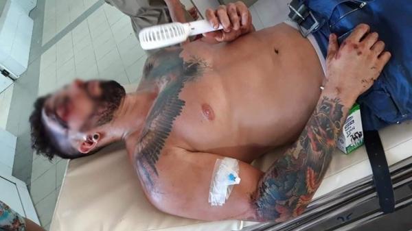 Bệnh viện Đà Nẵng lên tiếng sau khi bị tố không cấp cứu cho người nước ngoài bị tai nạn vì không có tiền và người thân