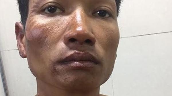 Ninh Bình: Đốt nhà, dìm vợ chết trong bể nước do cuồng ghen