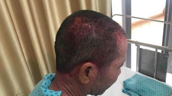 Sử dụng thuốc nhuộm tóc, người đàn ông bị phỏng rộp da đầu, cổ và mặt