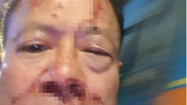 Một Việt kiều bị đánh hội đồng ở quận 10, TP.HCM