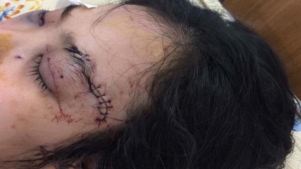 Sau tố giác tội phạm, cô gái 2001 bị nhóm thanh niên cắt tai, đánh vỡ giác mạc