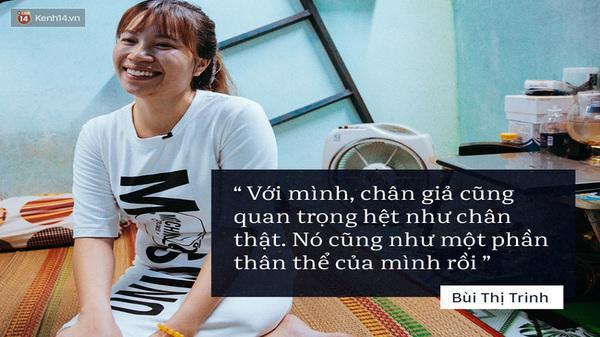 Học sự lạc quan sống từ cô gái 24 tuổi mất 1 chân: tự lập ở Sài Gòn, nỗ lực làm việc kiếm tiền để mua chân giả