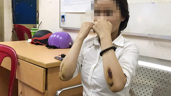 Ám ảnh của cô gái bị cướp kéo lê 50 m trên đường Sài Gòn