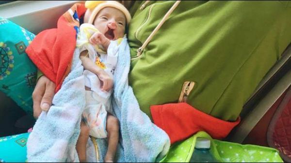 Xót cảnh bé trai 2 tháng tuổi bị suy dinh dưỡng, nặng chỉ 2 ký mà mẹ nghèo không đủ tiền để đưa lên Sài Gòn chữa bệnh