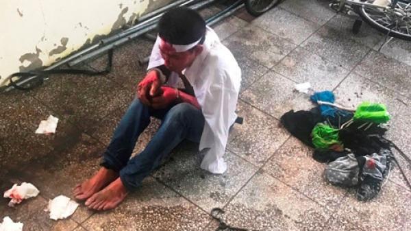 2 bé gái bị cha dượng phóng hỏa đốt nhà đã tử vong tại BV Chợ Rẫy