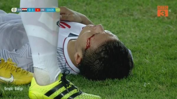 Xót xa hình ảnh Quang Hải đổ máu trong trận thắng Olympic Syria