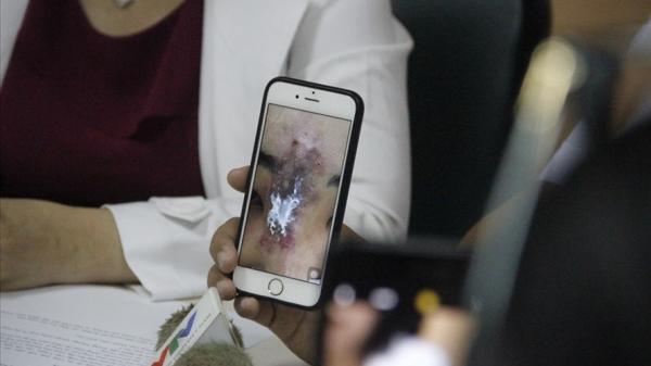 Nữ sinh Sài Gòn tan n.át mũi sau khi tân trang nhan sắc
