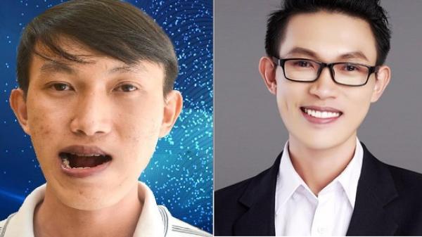 """Diện mạo mới của thạc sĩ xe ôm ở Sài Gòn sau 17 năm khốn khổ vì khuôn mặt """"dị dạng"""""""