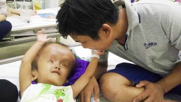 Trà Vinh: Xót cảnh bé gái 4 tuổi bị não úng thủy, đầu to gấp ba lần người thường mà bố mẹ nghèo không tiền chạy chữa