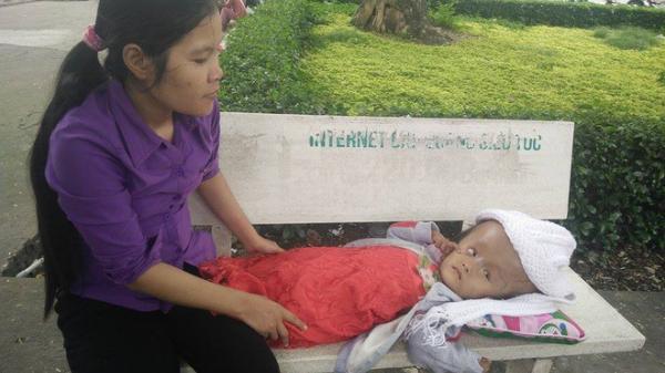 Gần 70 triệu đồng đã giúp bé gái 4 tuổi ngụ Trà Vinh bị não úng thủy phẫu thuật thành công, giữ lại mạng sống