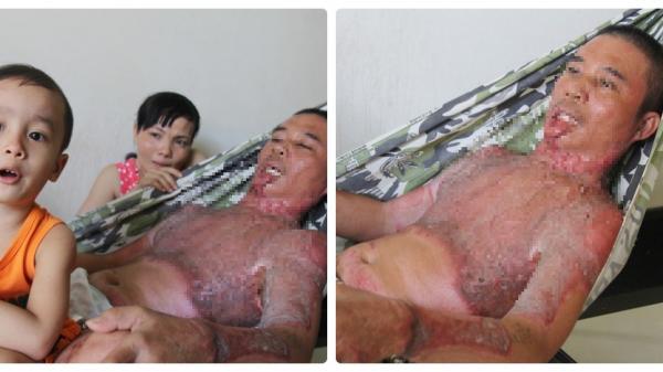 Trà Vinh: Gia đình người bố bị điện giật cháy người, tới mức con trai không thể nhận ra đã nhận được tiền ủng hộ