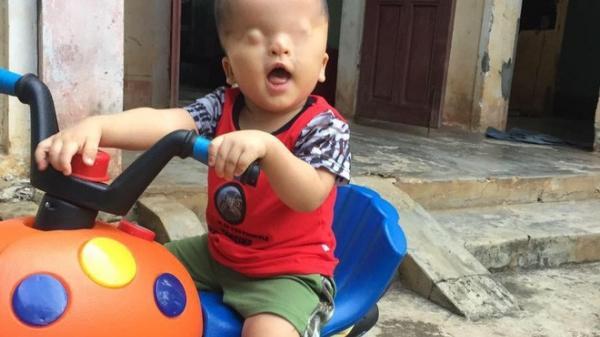 Cậu bé không có đôi mắt ở Nghệ An tuyệt vọng khi bác sĩ tại Singapore kết luận về cơ hội nhìn thấy ánh sáng