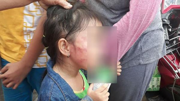 PHẪN NỘ: Bé gái 5 tuổi nghi bị bảo mẫu tát liên tục đến sưng mặt, dọa lấy kéo cắt lưỡi nếu nói cho gia đình biết