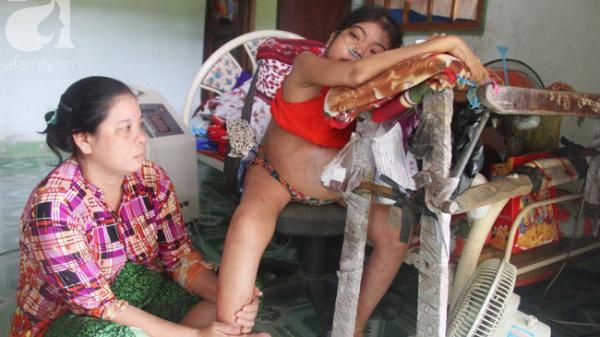 Trà Vinh: Xót cảnh cô gái trẻ 12 năm ngủ ngồi, chỉ mong chết đi vì không muốn bố mẹ nợ hoài mà không thể chữa bệnh cho em