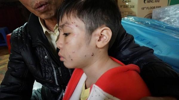 Lời khai rợn người của ông bố bạo hành con trai 10 tuổi gãy xương sườn, rạn xương sọ