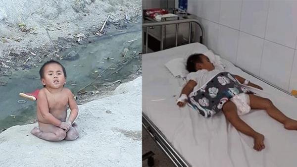 Mới biết tự xúc ăn, em bé tật nguyền bất ngờ nhập viện vì bệnh nặng