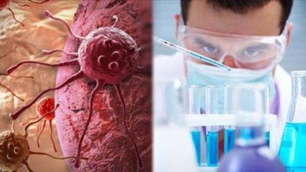 Cả thế giới ăn mừng khi khoa học tìm thấy hoạt chất 'giết chết' tế bào ung thư trong 30 phút