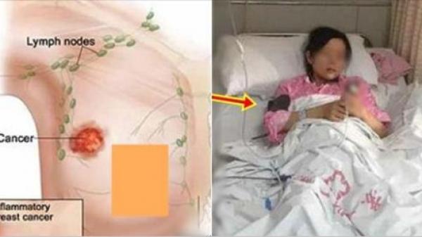 Chỉ vì hai thói quen tưởng như vô hại này của chồng mà nhiều phụ nữ Việt đã bị ung thư vú, thương vợ thì bỏ ngay các anh ơi!