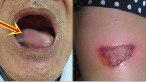 Ung thư đừng để quá muộn: BS bệnh viện Việt Đức chỉ rõ 20 dấu hiệu báo bệnh thường bị phớt lờ