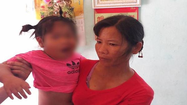 Nóng: Cô giáo mầm non bị tố đánh bé 3 tuổi liệt dây thần kinh, méo mồm