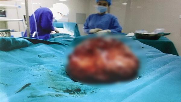 Nóng: Giải thoát cho bệnh nhân người Tuyên Quang 30 năm bị khối u khổng lồ đeo bám