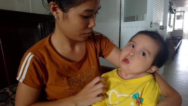 Xót thương bé gái hơn 1 tuổi bị côn trùng đốt khiến tay chân co quắp, teo não không thể nhận thức