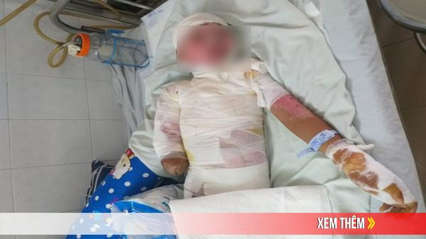 Trèo lên cột điện bắt chim, bé trai 12 tuổi bị điện giật phải cắt bỏ tay chân, tương lai mịt mù