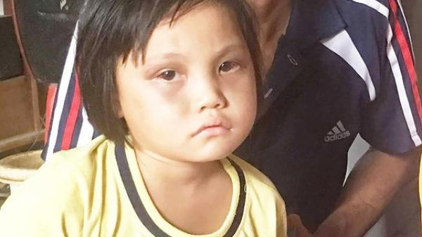 Đắk Lắk: Vợ chồng nghèo mong có tiền chữa bệnh cho con