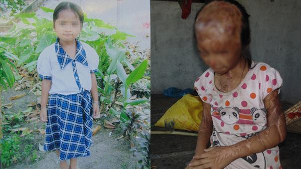Vĩnh Long: Rơi nước mắt trước cảnh sống mù lòa của cô bé 12 tuổi, sau 5 năm hứng trọn can a-xít trong trận đánh ghen kinh hoàng