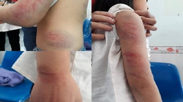 Bé gái ở Vĩnh Phúc bị bố đánh đập thâm tím người