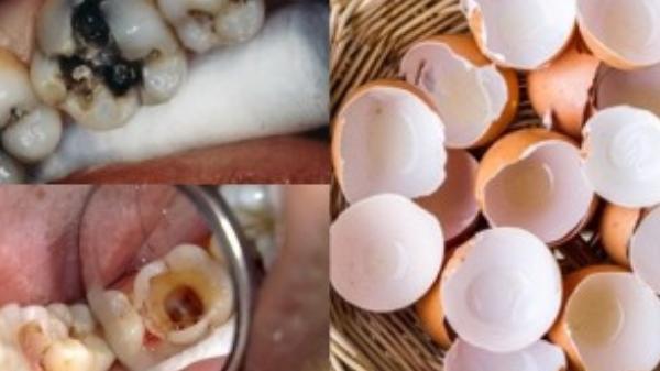 Chẳng cần hàn đâu, răng sâu sẽ tự khắc được lấp đầy, đảm bảo 10 năm không tái phát nhờ công thức độc – lạ từ vài chiếc vỏ trứng gà