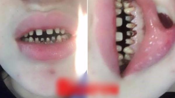 Cô gái trẻ khóc ròng, không dám ra đường sau khi bọc răng sứ