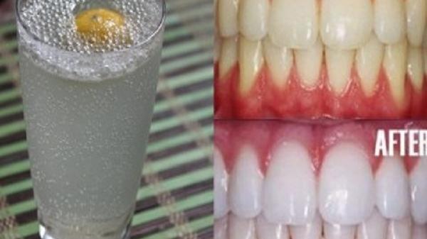 Ngậm 1 ngụm nước này trong 5 phút, hàm răng ố vàng, xỉn màu sẽ trở nên sáng bóng, hơi thở thơm mát chỉ sau đúng 1 đêm