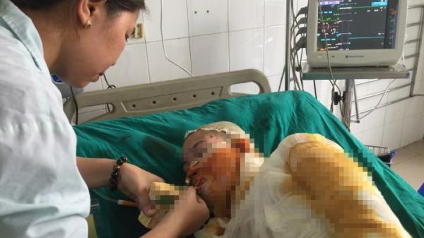 Xót xa người mẹ trẻ bỏng nặng nguy kịch vì cứu bạn bị tẩm xăng được cấp cứu tại bệnh viện Vĩnh Phúc
