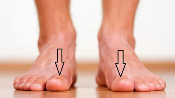 CẢNH BÁO: Nếu bàn chân có 5 dấu hiệu này thì đừng chủ quan mà nên đi khám ngay còn kịp