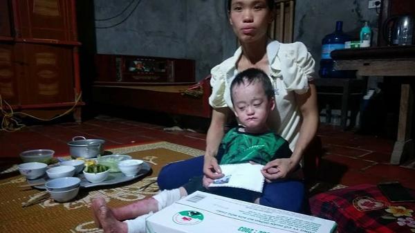 Lễ Vu Lan: Nghẹn lòng người mẹ mong được đau thay con mình
