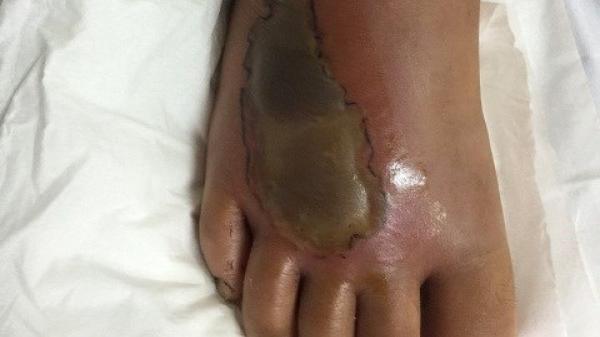 CẢNH BÁO: Mùa rắn sinh sôi, nhiều trẻ bị rắn cắn phải nhập viện vì hoại tử chân