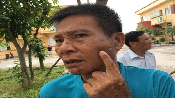 Vĩnh Phúc: Bị hành hung vì nhắc nhở hàng xóm vệ sinh bẩn