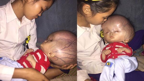 Xót xa bé trai 1 tuổi mắc bệnh não úng thủy, mẹ ôm con khóc nấc trong căn nhà xập xệ