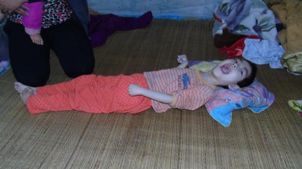 Mỗi ngày buộc phải cho con uống 12 viên thuốc ngủ, người mẹ đau đớn nhìn con ngày càng héo úa