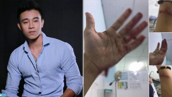Ca sĩ Đông Hùng, Top 3 Việt Nam Idol bị chém 12 nhát, tuyệt vọng vì mẹ ruột vay nặng lãi tiền tỷ